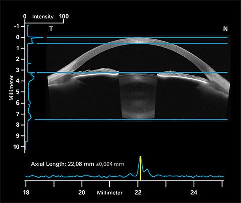 Biometrie für IOL Kalkulation
