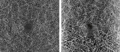 Links: OCT-Angiografie tieferliegender Gefäßnetze bei einem gesunden Auge. Rechts: OCT-Angiografie bei älterem Venenastverschluss mit sichtbaren Veränderungen in der tieferliegenden Gefäßstruktur im Bereich der Makula. OCT-Angiografie wird auf dem 85.000 Hz OCT2 Modul für SPECTRALIS aufbauen.