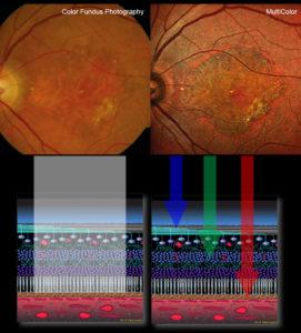 Das SPECTRALIS MultiColor-Modul stellt eine Bildgebungsmodalität dar, die zur Visualisierung der Netzhaut die konfokale Scanning-Laser-Technologie anstelle des weißen Laser-Lichts nutzt.