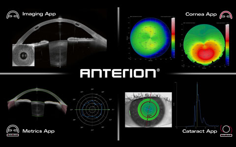 ANTERION