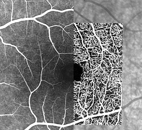 Hybrid angiography with SPECTRALIS high-resolution OCT Angiography Module identifies vascular detail and correlates it with dye-based angiography. Left to right: FA, OCTA and IR images.