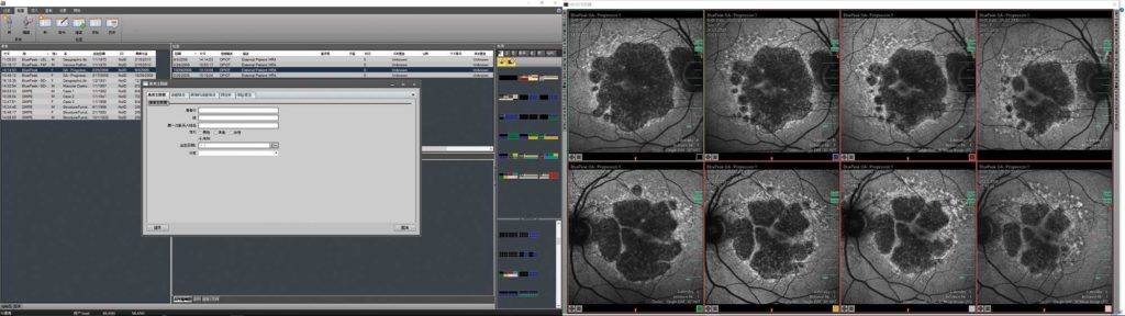 The next generation HEYEX software in a dual monitor setup: The monitor on the left shows the navigator screen with the versatile data management tools. The one on the right shows the multi-modality viewer with an automatic layout for BluePeak autofluorescense images to efficiently visualize structural changes over time.