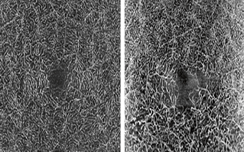 Left: OCT Angiography of the deep vascular network in a healthy eye. Right: OCT Angiography of an old BRVO with visible changes in the deep vascular network, clearly seen between inferior and superior. OCT Angiography will build on the OCT2 Module.