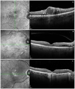 Macular oedema secondary to branch retinal vein occlusion with epiretinal membrane (image A). Diabetic retinopathy with secondary maculopathy (image B). Post-treatment wet AMD with RPE atrophy and sub-retinal fibrosis (image C).