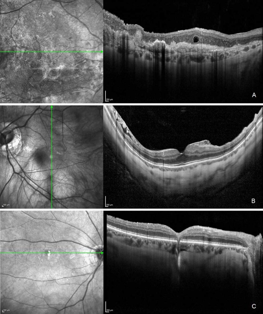 The patient volunteers exhibited wet AMD (image a), myopic macular schisis and epiretinal membrane (image b) and asymptomatic chorioretinal scar (image c).