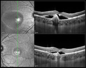 The winning image showing bilateral adult vitelliform macular dystrophy in a 19 year old patient.