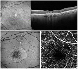 Infrared fundus image with OCT (top), autofluorescence (bottom left) and OCT Angiography (bottom right) images from OCT LIVE Masterclass patient with dry and neovascular AMD.