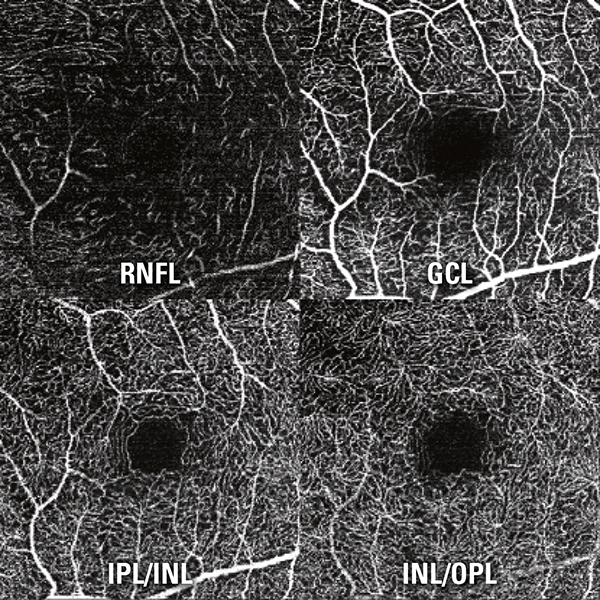 The SPECTRALIS OCT Angiography Module non-invasively produces detailed, three-dimensional representations of the perfused retinal and choroidal vasculatures.
