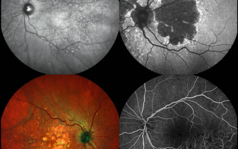 SPECTRALIS Multimodal Imaging