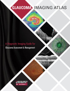 Cover of the Glaucoma Imaging Atlas